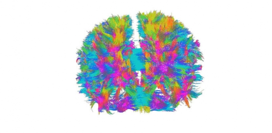 3D fibre map of the brain from magnetic resonance imaging (MRI)